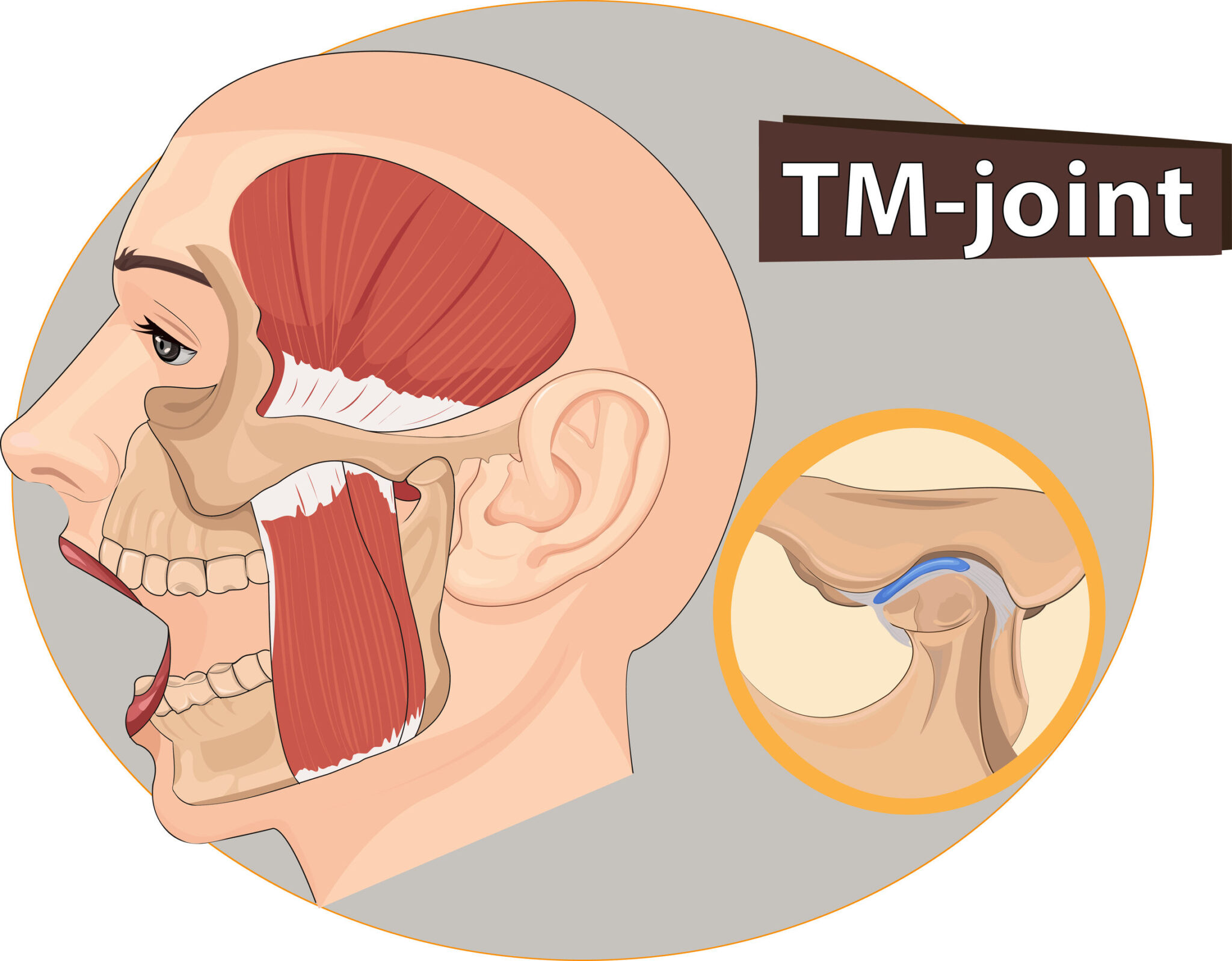 image of TMJ